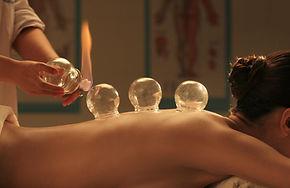 cupping-healing.jpg