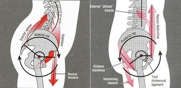 anterior pelvic tilt