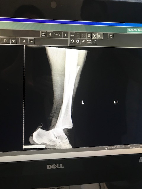 Ankle Dislocation Leg Fracture