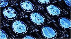brain mri image for stroke