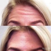 wrinkle relaxer 2.png