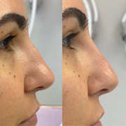 nose job 2.JPG
