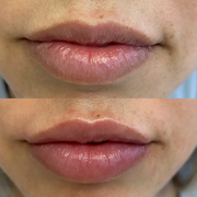 lips 4.png