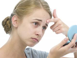 Consejos para disimular y tratar el acné