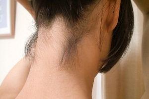 зад шея.jpg Профессиональный перманентный макияж (татуаж) Акварельные губки / помадный эффект Удаление некачественного татуажа Аппаратная эпиляция шугаринг Пудровое напыление бровей Удаление татуировок КРЕКШИНО МАРУШКИНСКОЕ ПОСЕЛЕНИЕ МЕДОВАЯ ДОЛИНА 7к2 коррекция перекрытие сведение татуажа и татуировок Качественный профессиональный перманентный макияж в Студии Перманентного Татуажа Оболенской  от 5000 рублей. Также делаем коррекции, перекрытия, рефреш, сведения татуажа и татуировок. У нас работают лучшие специалисты своего дела с большим опытом Студия Перманентного Татуажа Светланы Аболонской 8(916)348-11-48 8(926)932-35-56 Перманентный макияж Коррекция бровей Лазерная эпиляция Удаление тату www.domlazera.ru