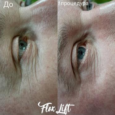 FlaxLift_27.jpg