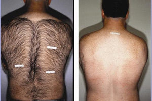 верх+плечи.jpg Профессиональный перманентный макияж (татуаж) Акварельные губки / помадный эффект Удаление некачественного татуажа Аппаратная эпиляция шугаринг Пудровое напыление бровей Удаление татуировок КРЕКШИНО МАРУШКИНСКОЕ ПОСЕЛЕНИЕ МЕДОВАЯ ДОЛИНА 7к2 коррекция перекрытие сведение татуажа и татуировок Качественный профессиональный перманентный макияж в Студии Перманентного Татуажа Оболенской  от 5000 рублей. Также делаем коррекции, перекрытия, рефреш, сведения татуажа и татуировок. У нас работают лучшие специалисты своего дела с большим опытом Студия Перманентного Татуажа Светланы Аболонской 8(916)348-11-48 8(926)932-35-56 Перманентный макияж Коррекция бровей Лазерная эпиляция Удаление тату www.domlazera.ru