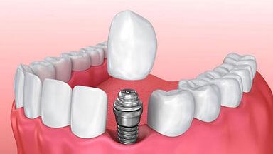 megadis implant.jpg
