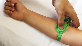 Vacuderm tourniquet for kids around the wrist of a child for venous cannulation/iv access