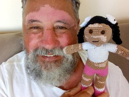 Grandfather João crochets dolls to make kids with skin conditions feel empowered