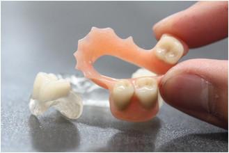 Thermo flex acrylic partial denture.jpg