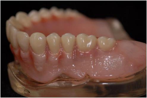 Complete Denture-1.jpg