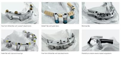 Implant Bar over denture.jpg