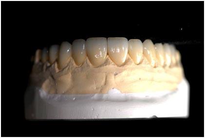 IPS emax crown and veneers-1.jpg