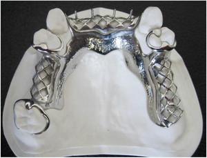 Bego Cast Partial denture.jpg