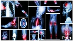 Pain Management Specialists - Booking 07393 130040