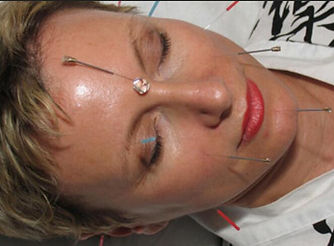 Cosmetic Facial Acupuncture,Rejuvenating Massage with Acupressure - Booking 07393130040