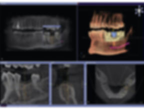 CBCT-Cone-Beam-Technology-Scan-Dental-Pr