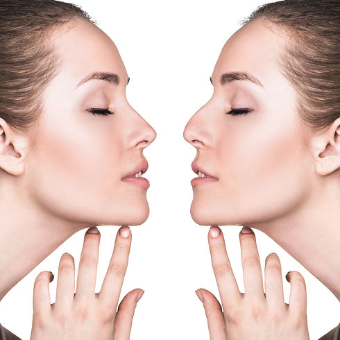sas-aesthetics | Dr M Saleki | Nose Reshaping | Non Surgical Rhinoplasty | Harley Street | London