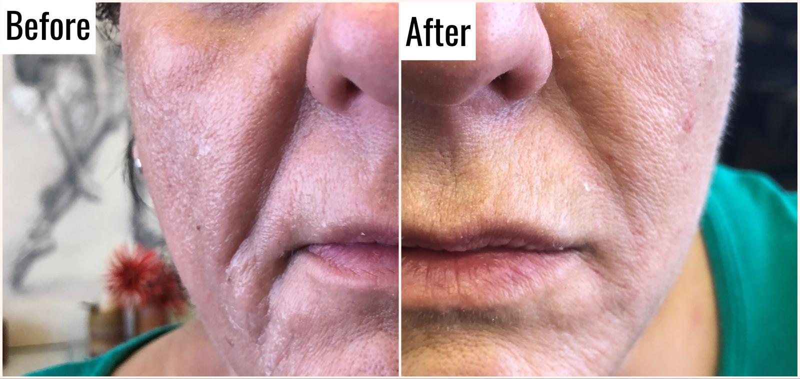 Dermal Filler | Facial Filler | Lip Filler | Cheek Filler