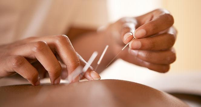 akupunktur - nåle sættes i