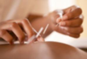メンズ鍼灸コース