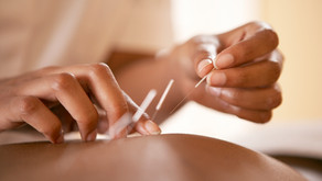 What is Dry Needling &  Cupping Massage