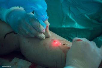 """Снимали в Инновационном центре флебологии доктора Евгения Летуновского.  Сначала была процедура ЭВЛО, лазерное удаление вен. А затем была криосклеротерапия.  Задача: показать без ретуши, что процедуры почти безкровные (помимо сопутствующих задач типа хороших портретов и прочее). Оказалось, что процедуры не только безкровные, но и почти безболезненные. За работой мастеров, которые с лёгкостью проникли лазером в вены или вытаскивали их на свет и удаляли, наблюдать одно удовольствие.  Кстати, белые """"червячки"""" в кадрах - это вены. Именно так они и выглядят:)  Сайт клиники: Flebolog.org"""