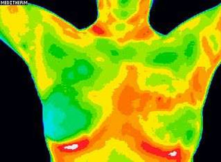 thermography_example.jpg
