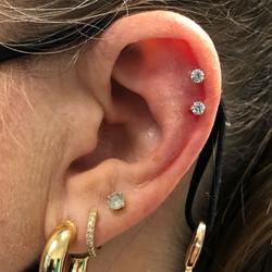 Double Cartilage