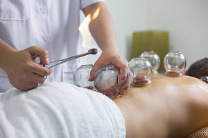 GettyImages-cupping-treatment-krisanapon
