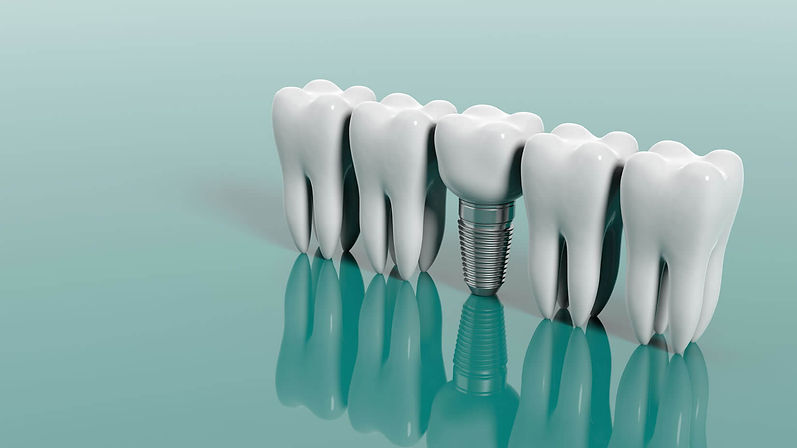 dental-implant-myths.jpg