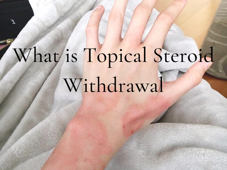 What is Topical Steroid Withdrawal?