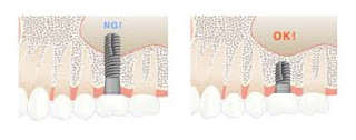 Short Implants