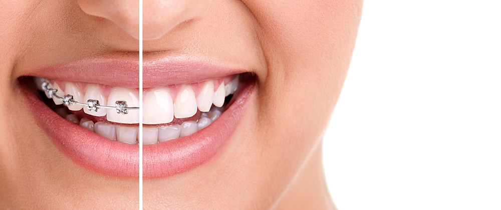Orthodontics and Dental Implants