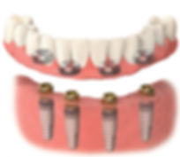 Implant Overdenture.jpg