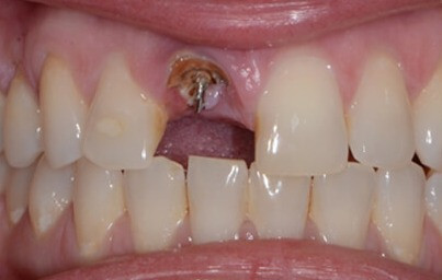 I broke a front tooth! What do I do?
