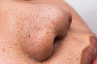 What are blackheads and What are Milia?