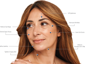 What is the Difference Between Micro needling and Radio Frequency Micro needling?