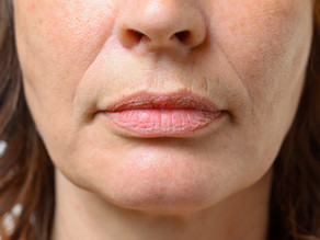 Can Fractional RF Micro Needling Treat Lip Lines?