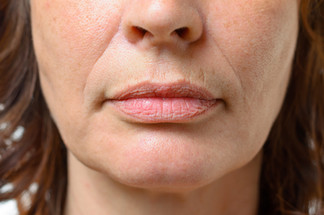Can Fractional Radio Frequency Micro Needling Treat Lip Lines?