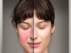 What is Rosacea and Acne Rosacea?