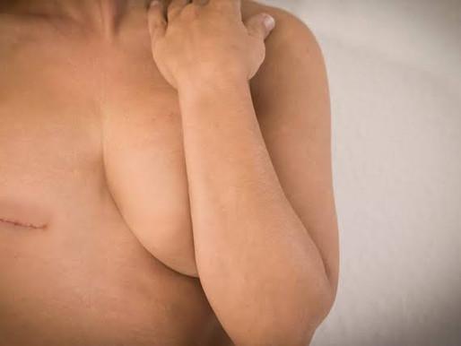 DF é condenado a pagar indenização por falha em cirurgia de reconstrução mamária