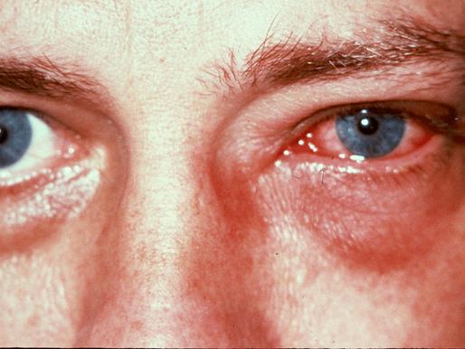 Inverno favorece aumento de casos de conjuntivite, alergia e olho seco