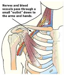 Physical Therapy and Thoracic Outlet Syndrome