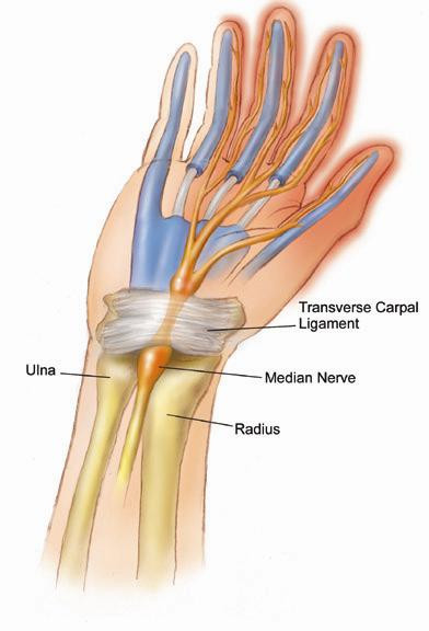 Physical Therapy and Carpal Tunnel Syndrome