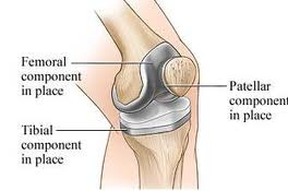 What To Expect After A Total Knee Replacement