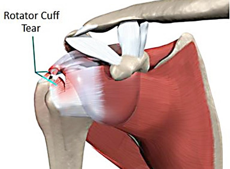 What to Expect After Rotator Cuff Repair Surgery