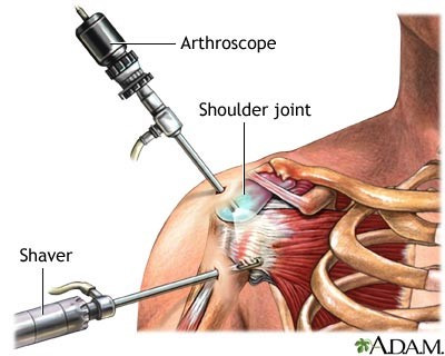 Bankart Repair of The Shoulder
