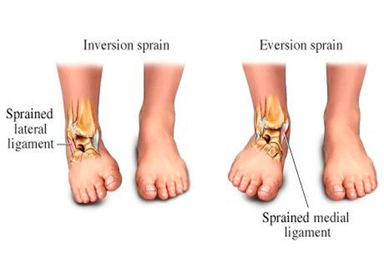 Physical Therapy and Ankle Sprains